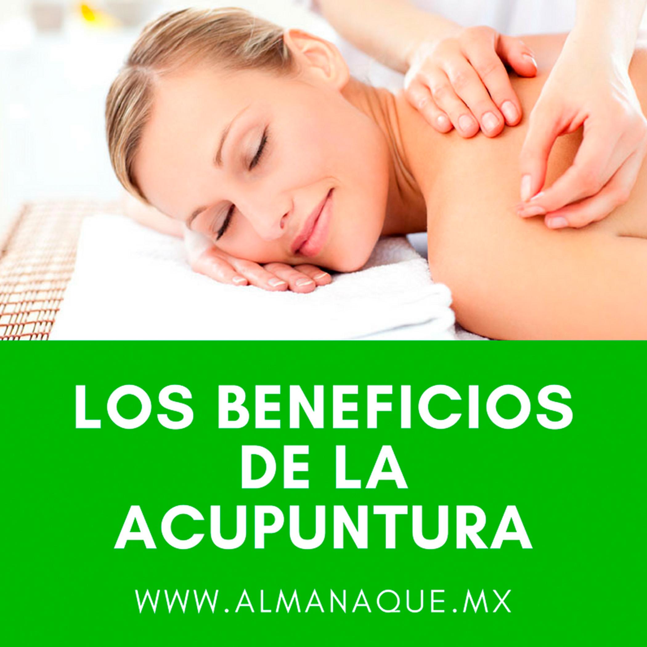 los-beneficios-de-la-acupuntura-cqa-almanaque-mx